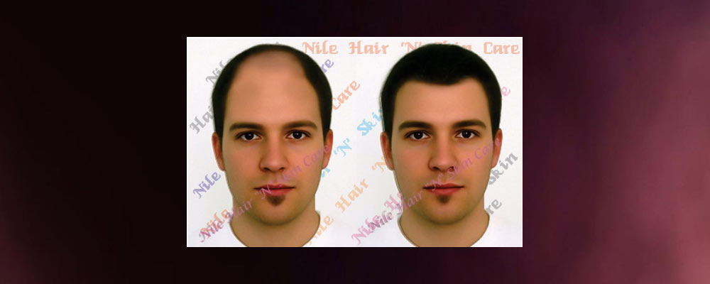Hair weaving in bangalore non surgical hair transplant in bangalore hair weaving in bangalore pmusecretfo Choice Image
