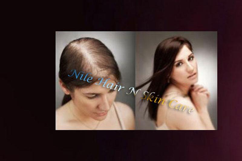 Hair Fall Treatment Baldness Treatment In Bangalore Nile Hair Care