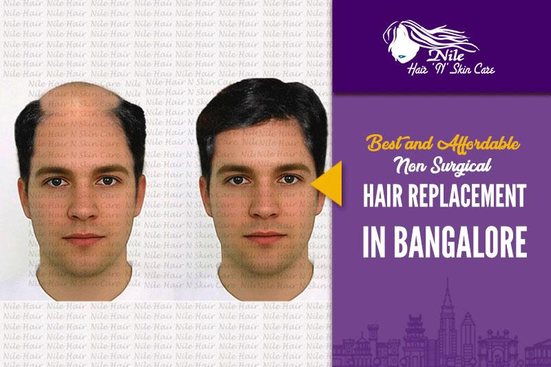 Best Hair Replacement in Bangalore